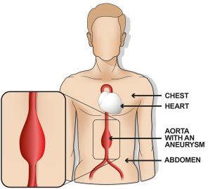 Diagram showing an aorta with an aneurysm.