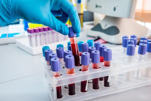 Laboratory blood samples.
