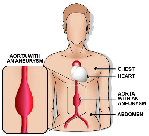 A diagram demonstrating what an abdominal aortic aneurysm looks like.