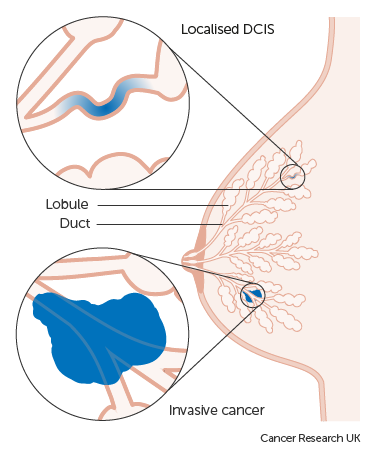 An illustration of localised DCIS and an invasive cancer.