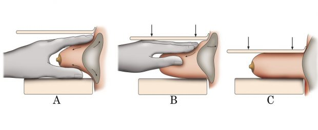 Images of a hand and a breast which demonstrate the Eklund technique