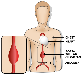 Illustration of an aorta with an aneurysm