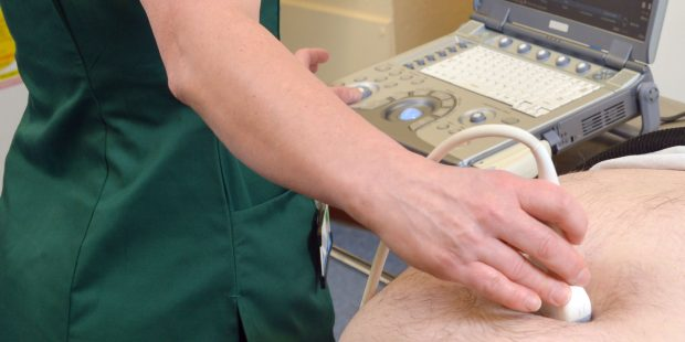 An ultrasound scan is being undertaken in the AAA screening programme.