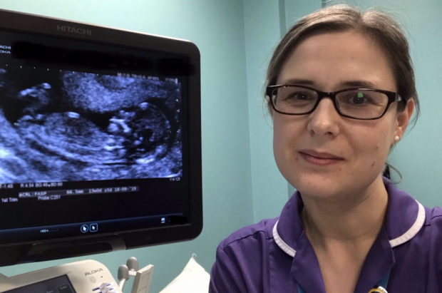 Photo of midwife sonographer Lis McNulty in front of a screen showing an ultrasound image