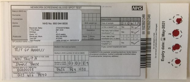A blood spot card showing a poor quality sample because the 4 blood spot samples are too small.