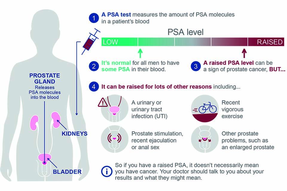 can hpv cause prostate cancer mpotriva febrei pe plan intern