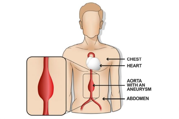 Images are taken of the aorta to check for swelling